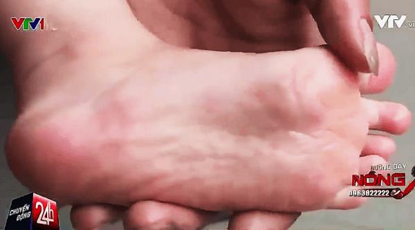 Chân con gái anh Hà nổi mẩn đỏ vì phải sử dụng nguồn nước ô nhiễm này