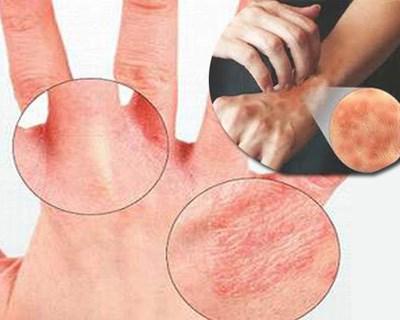 Da tay mẩn đỏ ngứa do sử dụng nguồn nước bị ô nhiễm