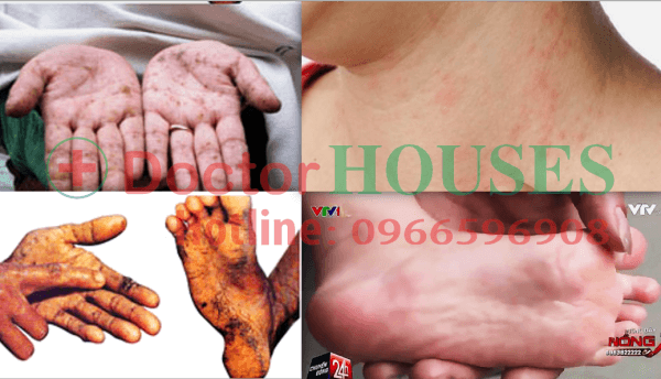 Sử dụng nguồn nước bị ô nhiễm sẽ gây các bệnh ngoài da