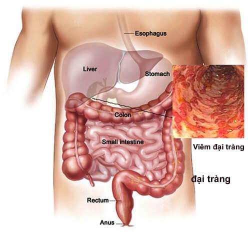 Tác dụng của nước ion kiềm đối với bệnh viêm đại tràng