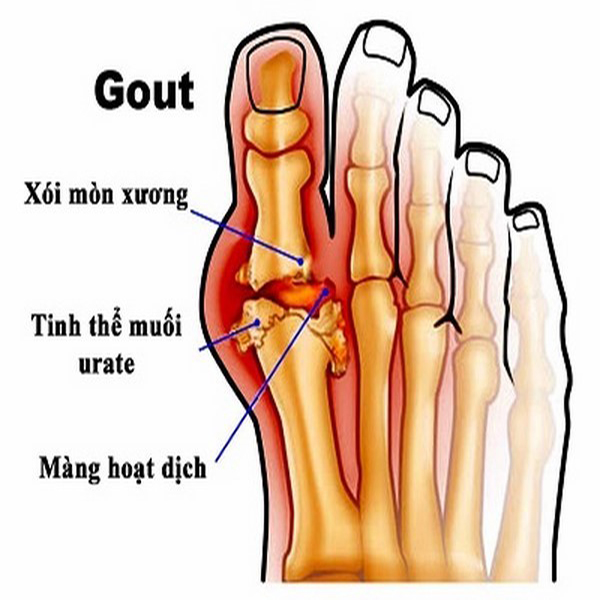 Nước ion kiềm hỗ trợ điều trị bệnh Gout
